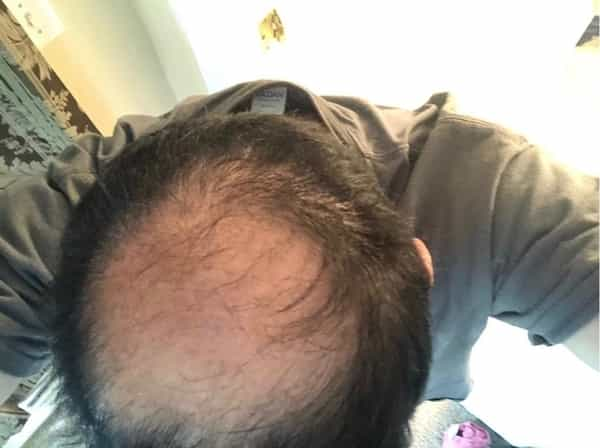 can Auxano Grow reverse MPB male pattern baldness