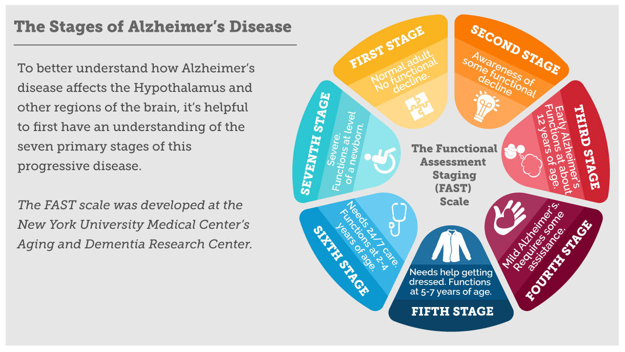 Stages of Alzheimers infographic