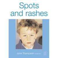 Spots and Rashes