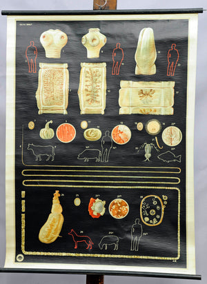 medicine digestion intestinal parasite vintage wall chart decoration black white