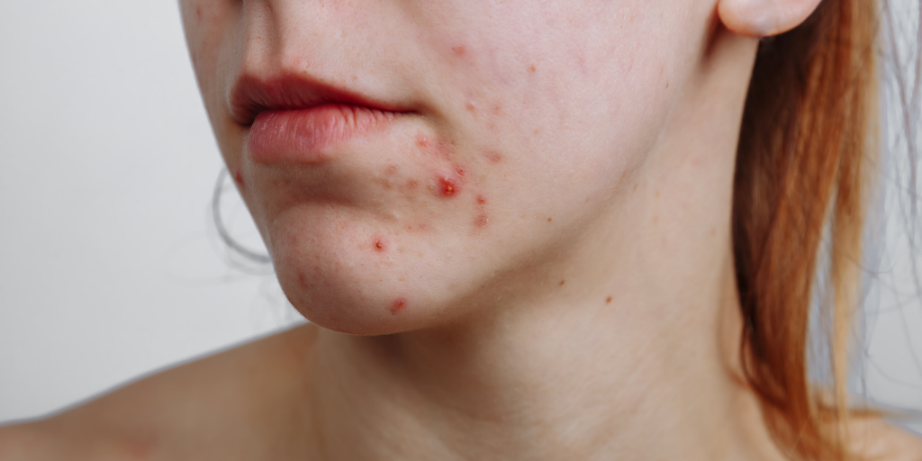 How to Get Rid of Maskne - All You Need to Know By TreCeuticals