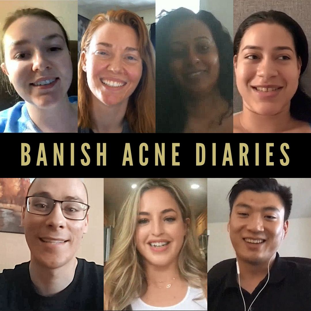 BANISH Acne Diaries: A Movement for Skin Positivity (Application)