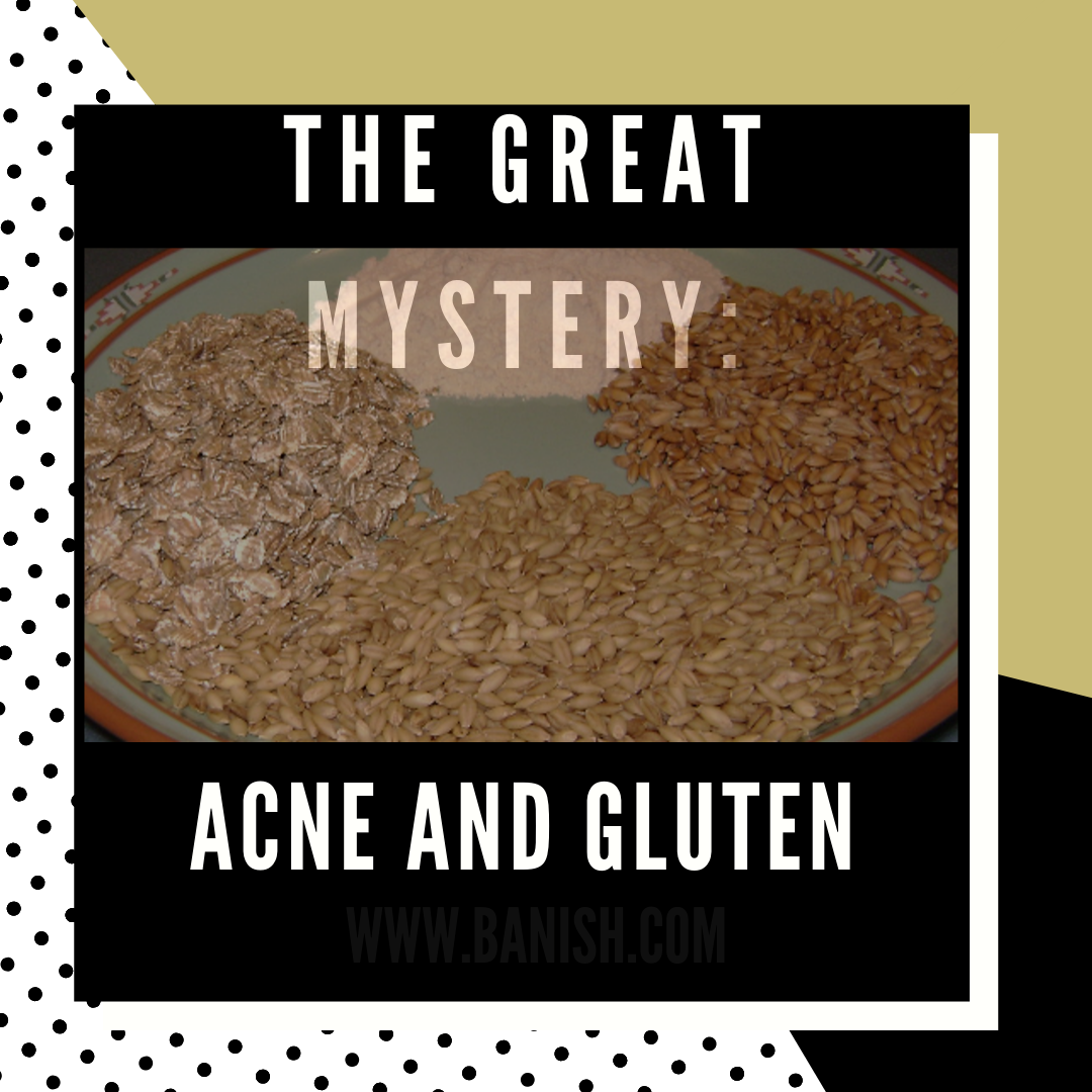 The Great Mystery: Acne and Gluten