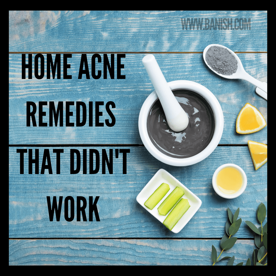 Home Remedies That Didn't Work