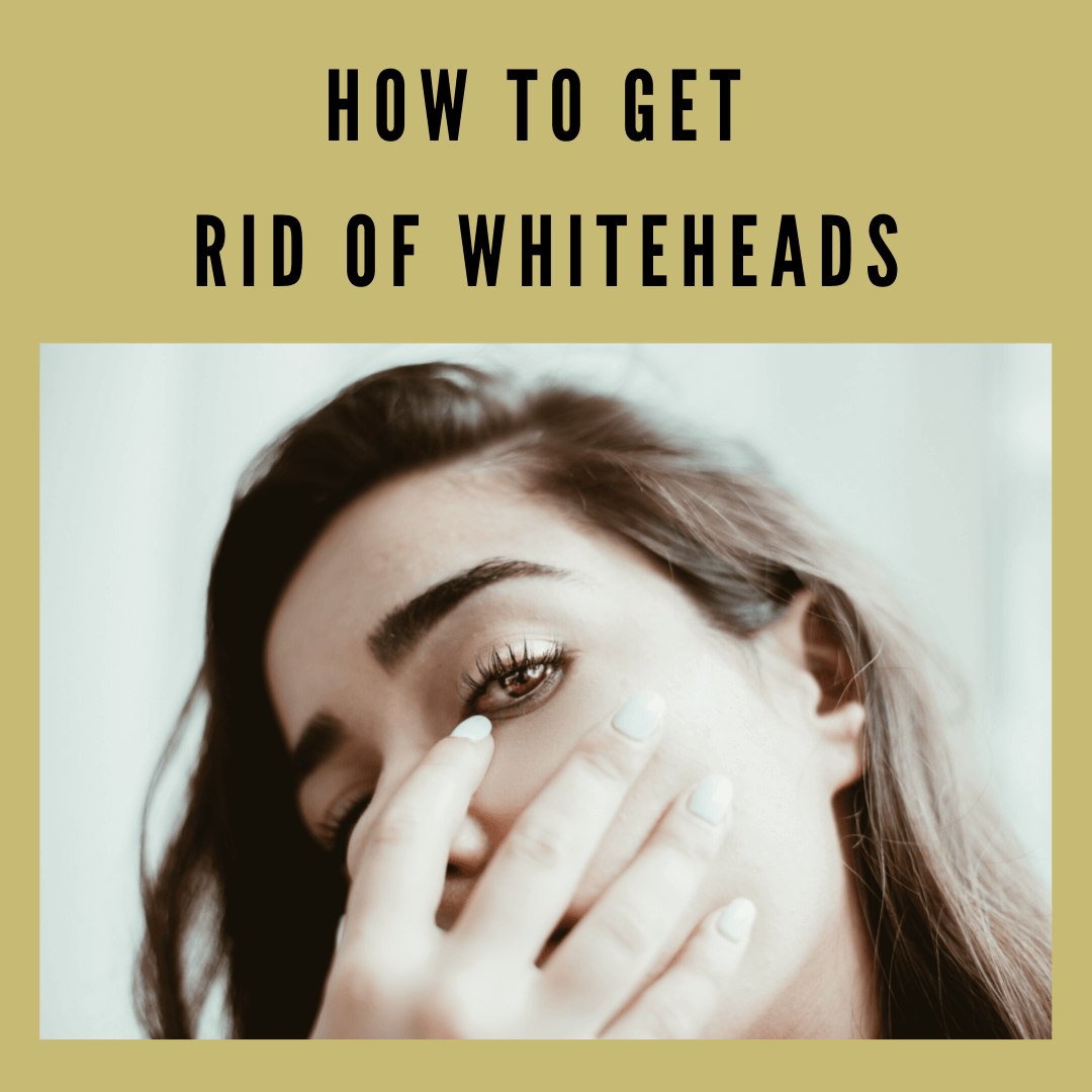 how to get rid of whiteheads