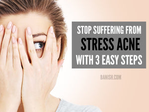 STOP SUFFERING FROM STRESS ACNE WITH 3 EASY STEPS
