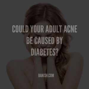 How Adult Acne and Diabetes Are Connected