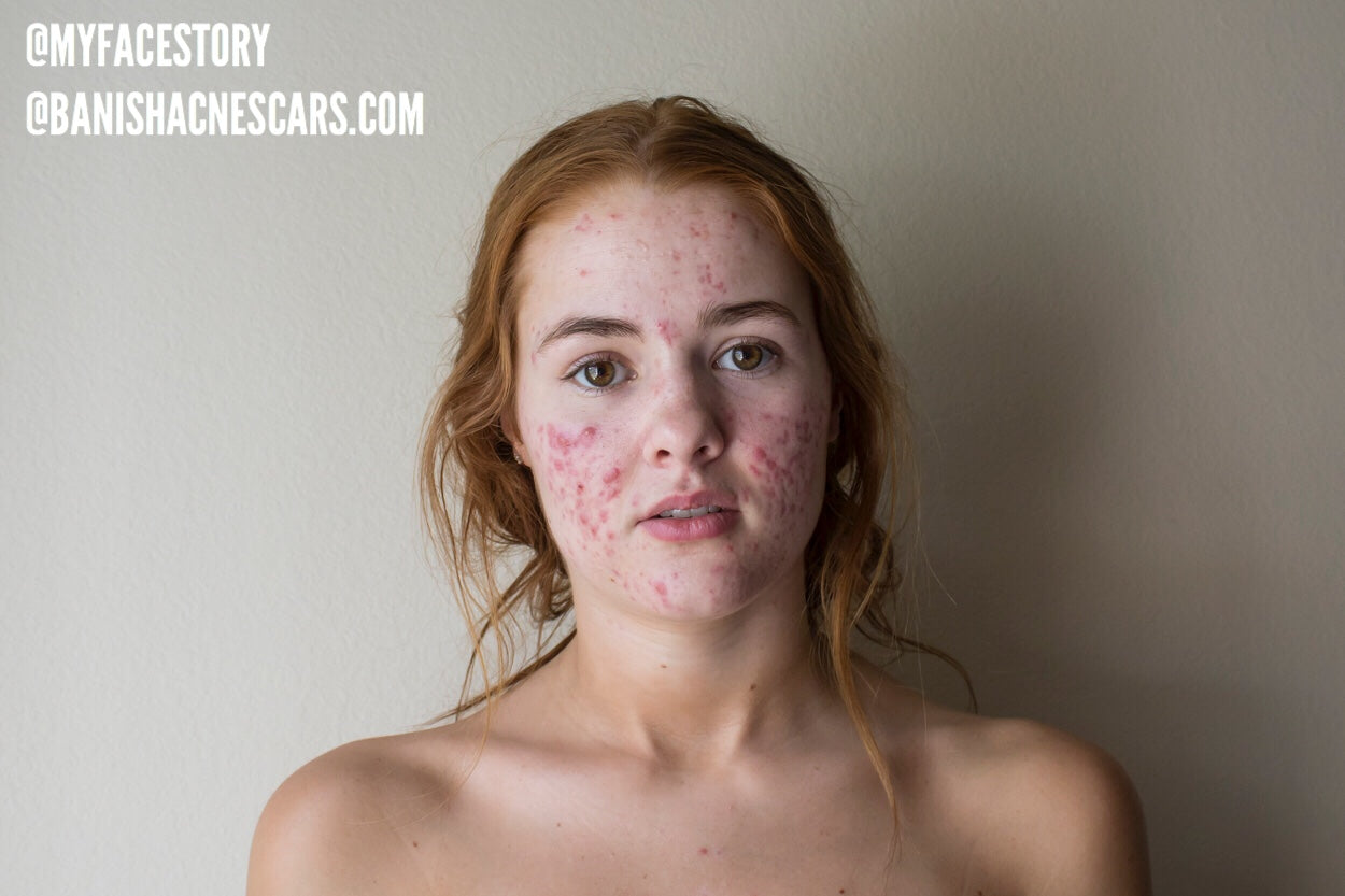 The Psychological Effects of Acne: My Experience