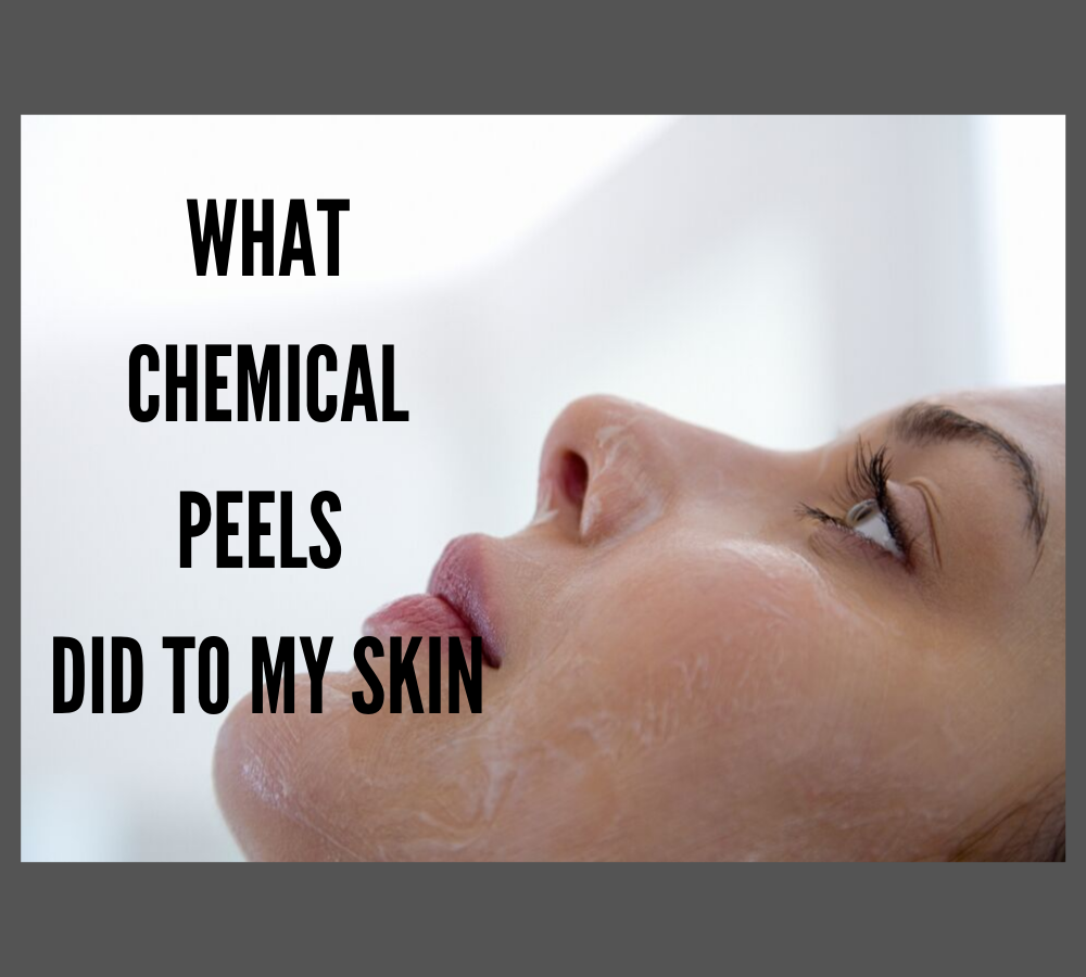 What Chemical Peels Did to my Skin