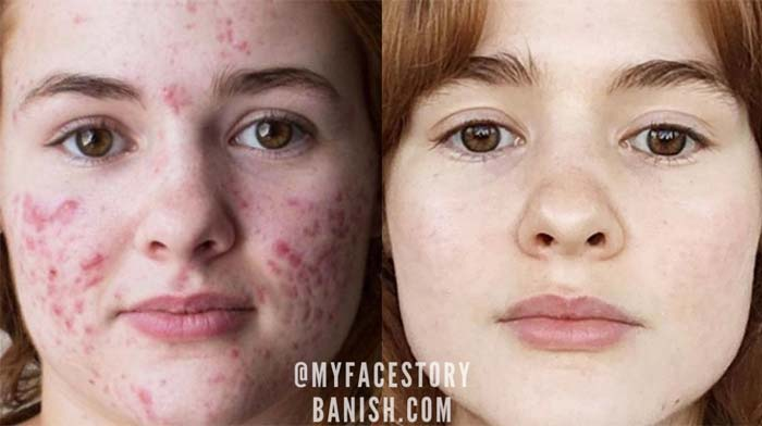 What Is Accutane Uses Side Effects And My Personal Experience