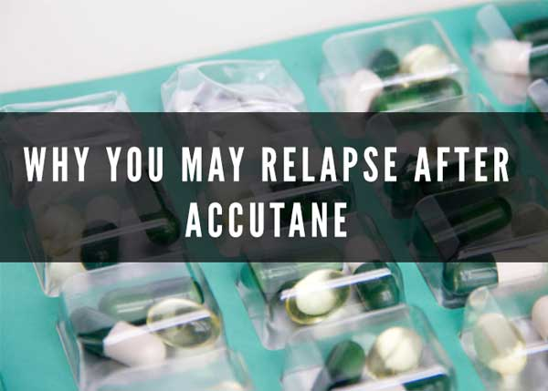why you may relapse after accutane