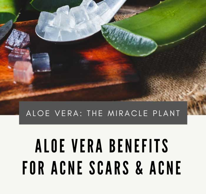 Aloe Vera For Acne Scars : The Benefits and Reviews