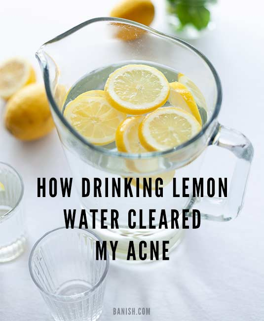 Drinking Lemon Water And Acne
