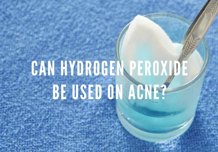 hydrogen peroxide on acne
