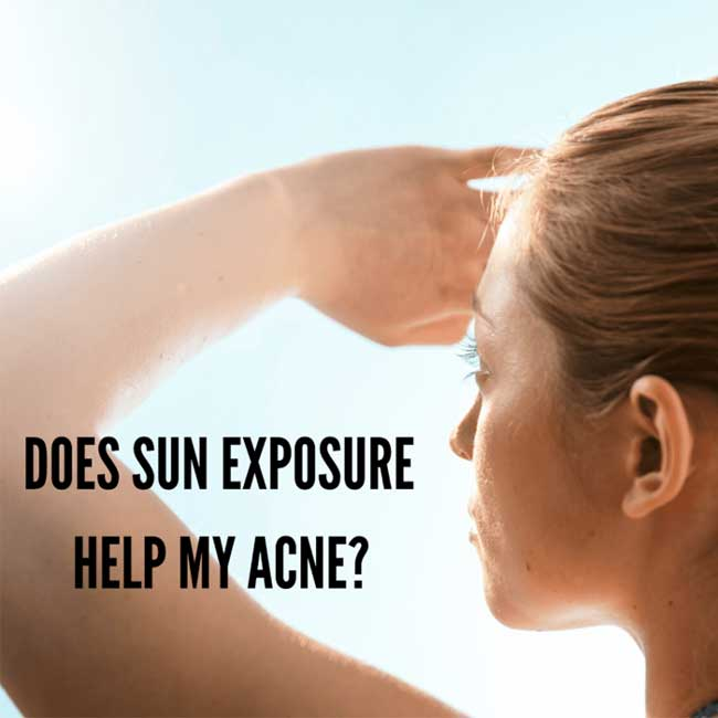 sun exposure and acne