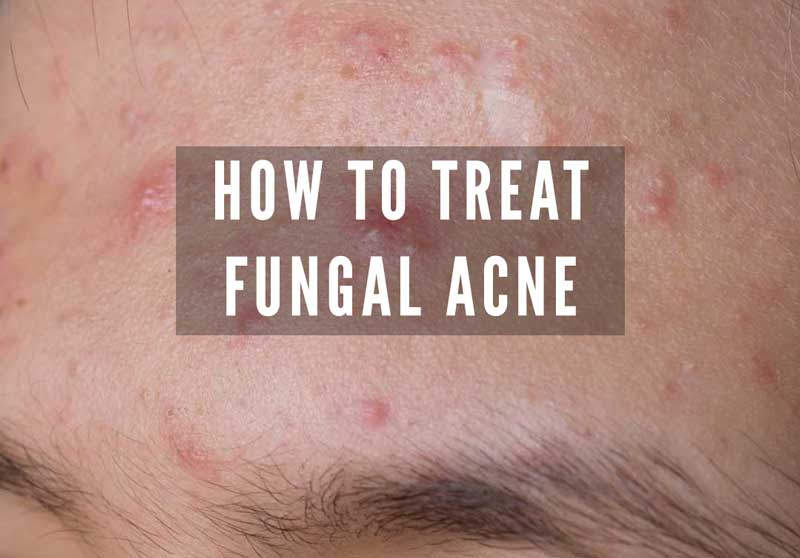 How To Tell If You Have Fungal Acne