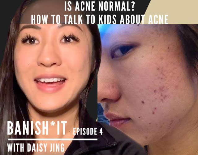 is acne normal  banish it podcast
