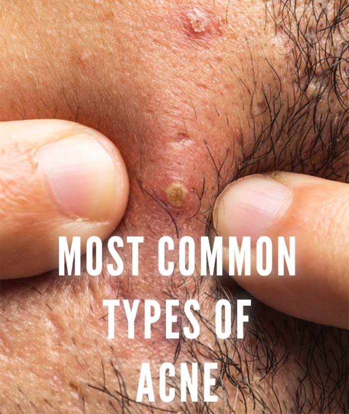 common types of acne