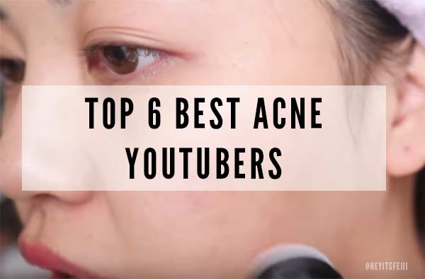 Best Acne YouTubers