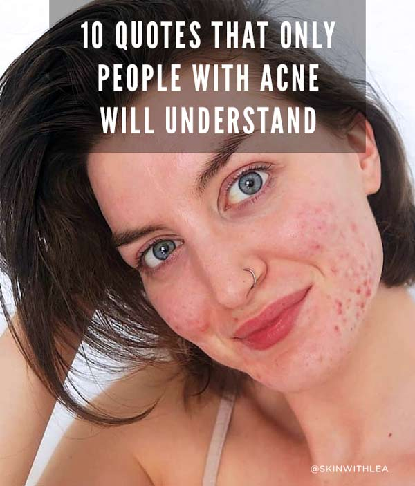 banish acne quotes