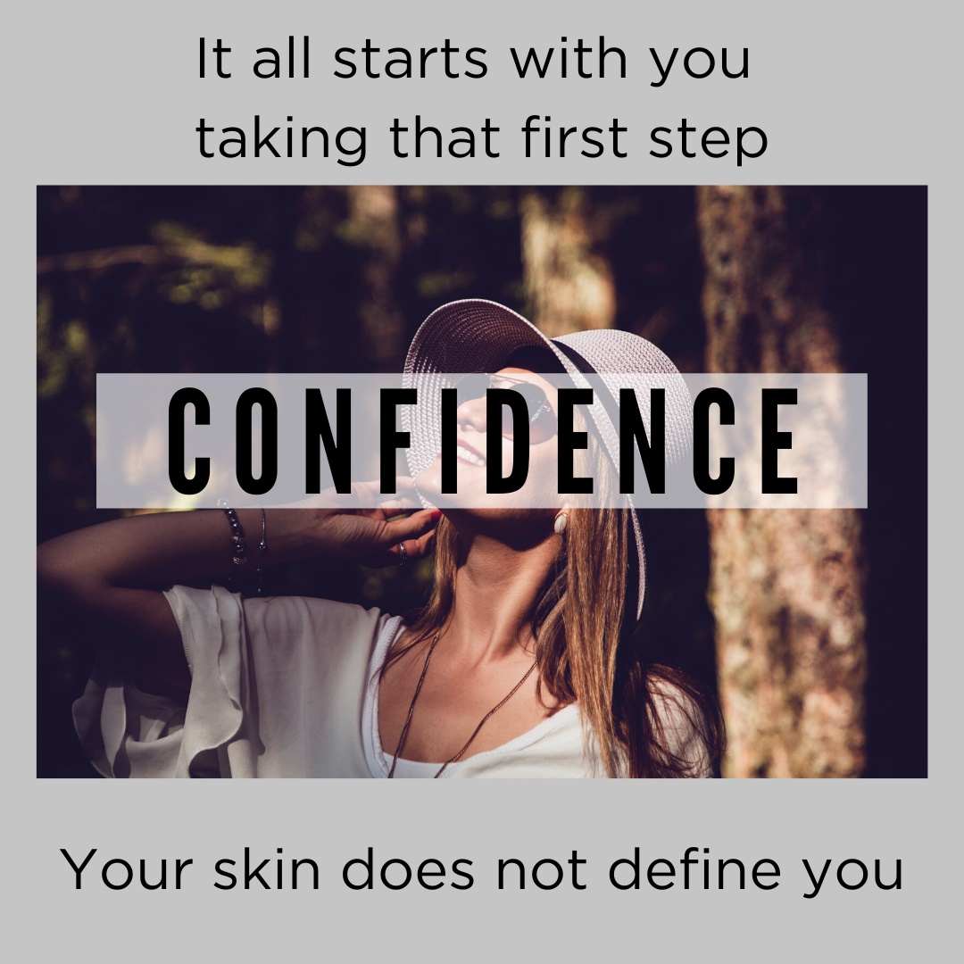 confidence with acne