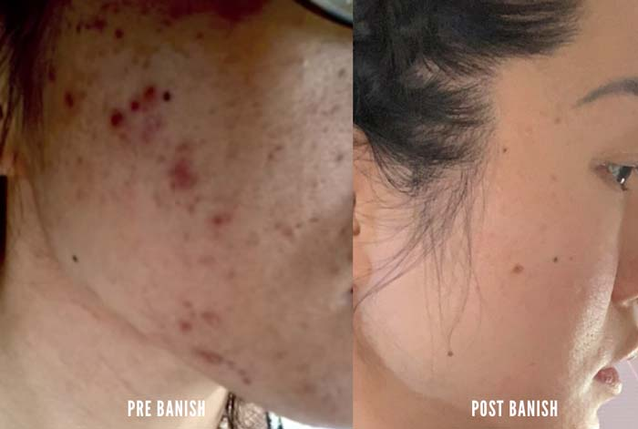 daisy-acne-story-before-after