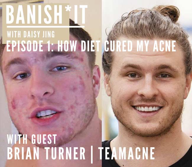 banish it podcast with guest brian turner