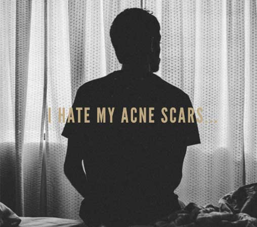 hate my acne scars blog