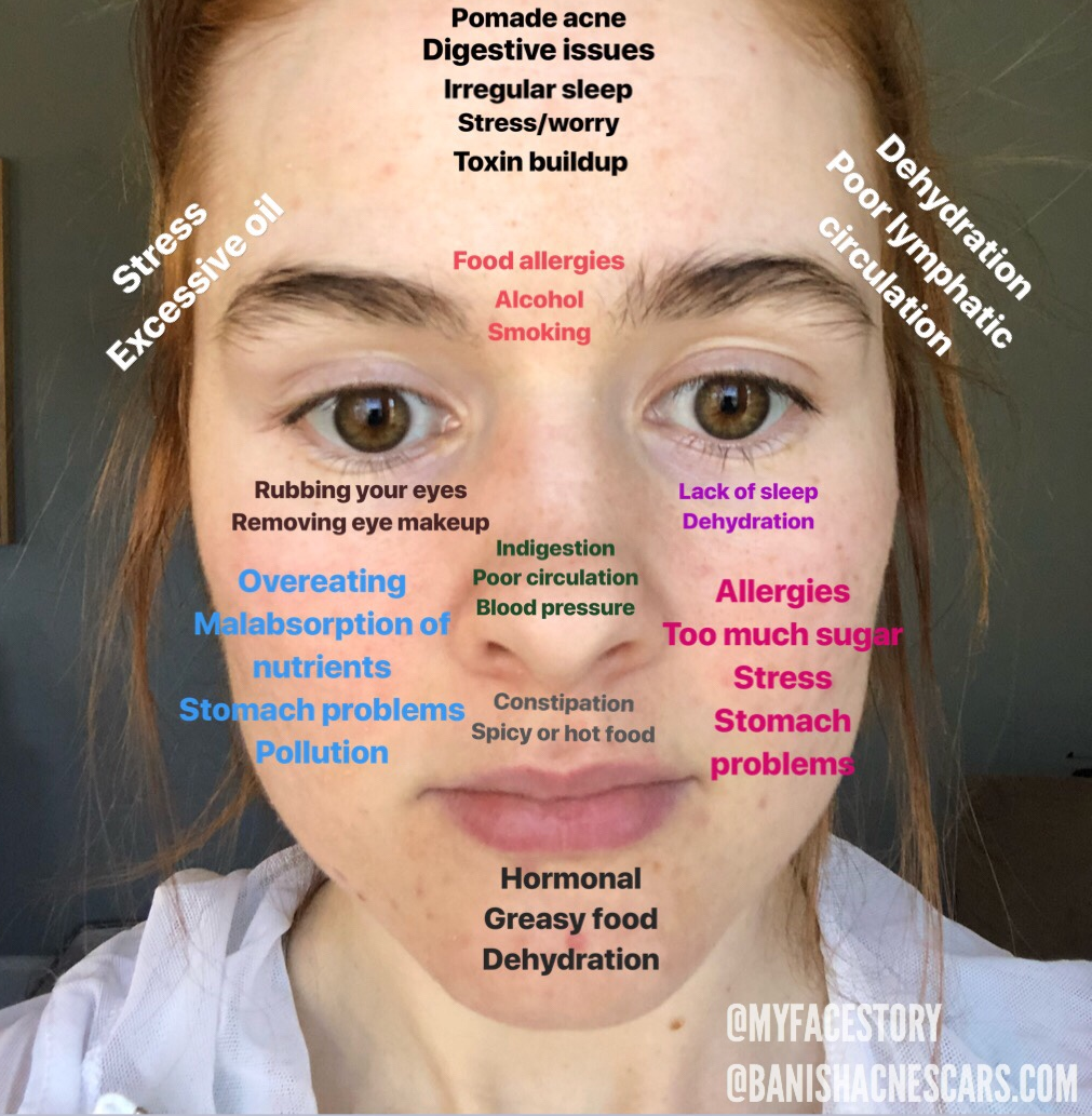 Acne Face Mapping Everything You Need to Know About Face Mapping | What is Face Mapping?