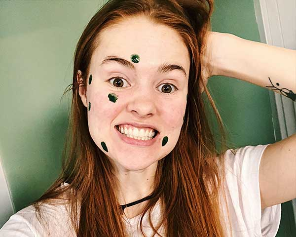 What it's Really Like Living With Adult Acne