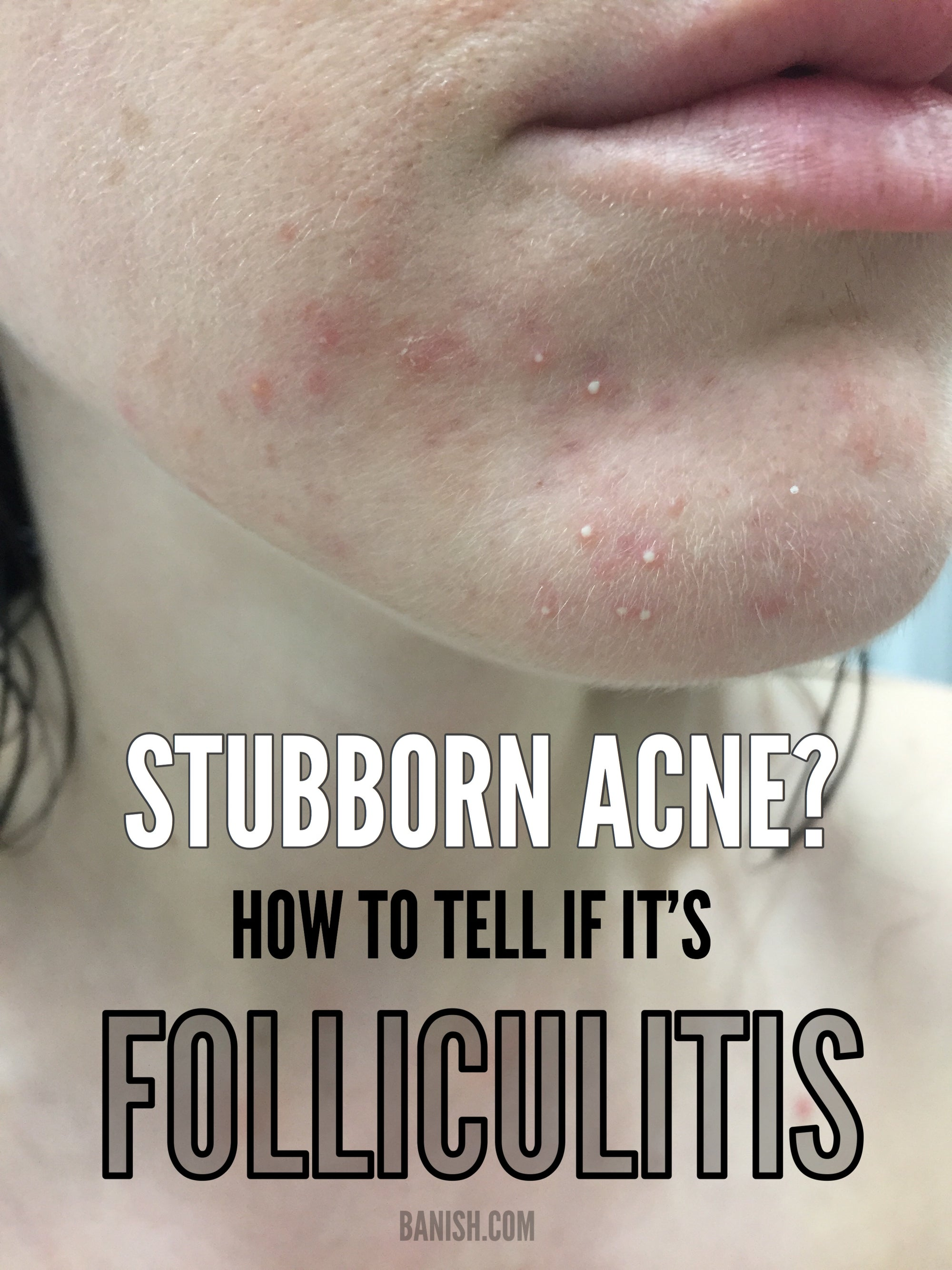HAVE STUBBORN ACNE? HOW TO TELL IF IT'S FOLLICULITIS