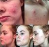 Why I Took Accutane And What Were The Effects