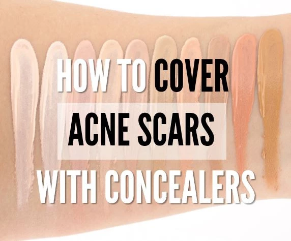 How to Cover Acne Scars with Concealers