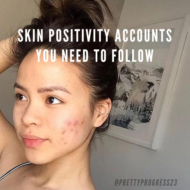 8 Skin Positivity Accounts you Should be Following