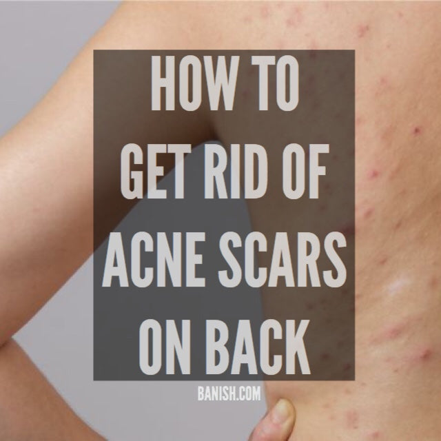HOW TO BANISH ACNE SCARS ON BACK AND CHEST