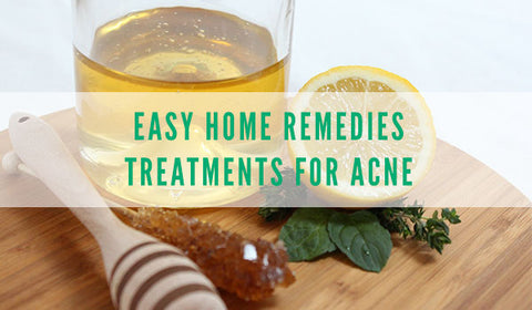 banish blog home acne remedies