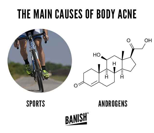causes of body acne