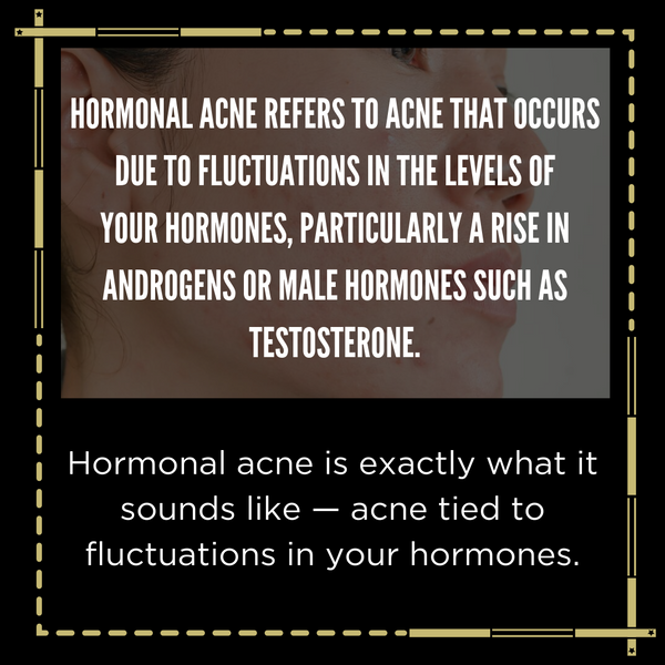banish hormonal acne
