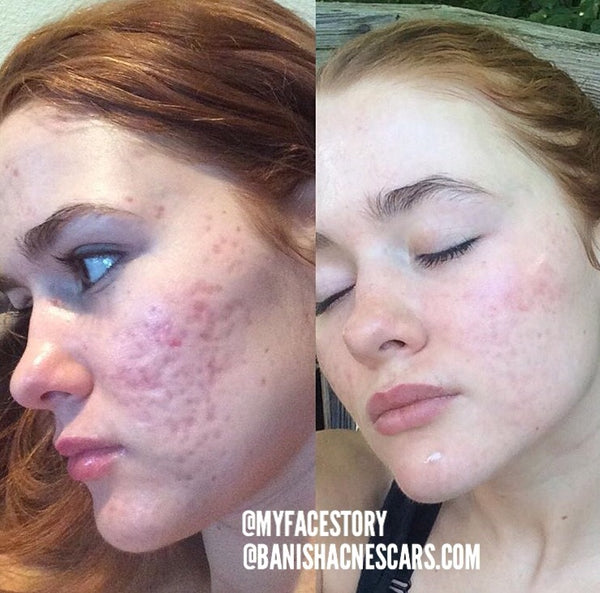 How To Get Rid Of Acne Scars - Treatment Options – Banish
