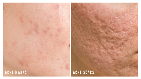 Acne scars compared to post inflammatory hyperpigmentation