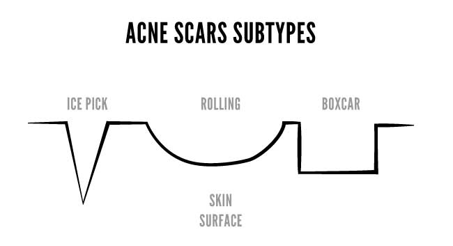 acne scars subtypes