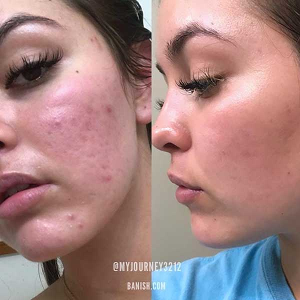 acne scars before and after banish starter kit