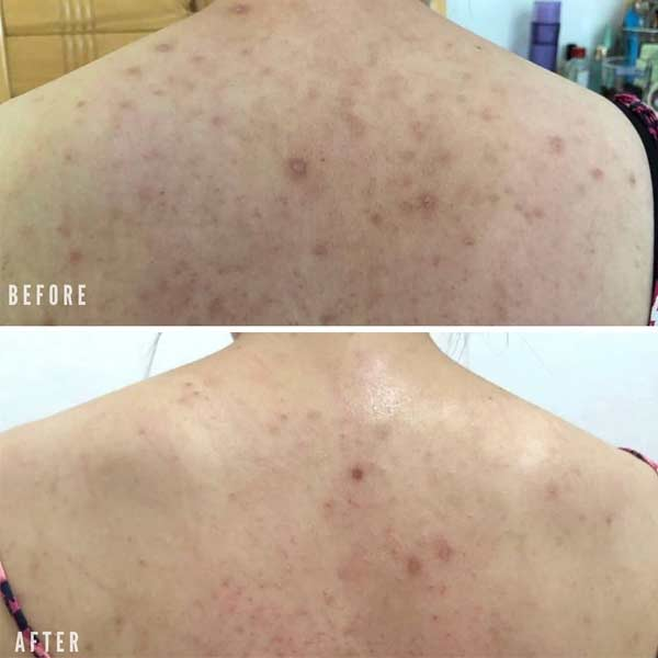 back acne scars before after banish kit