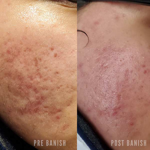 banish before and after on pitted scars
