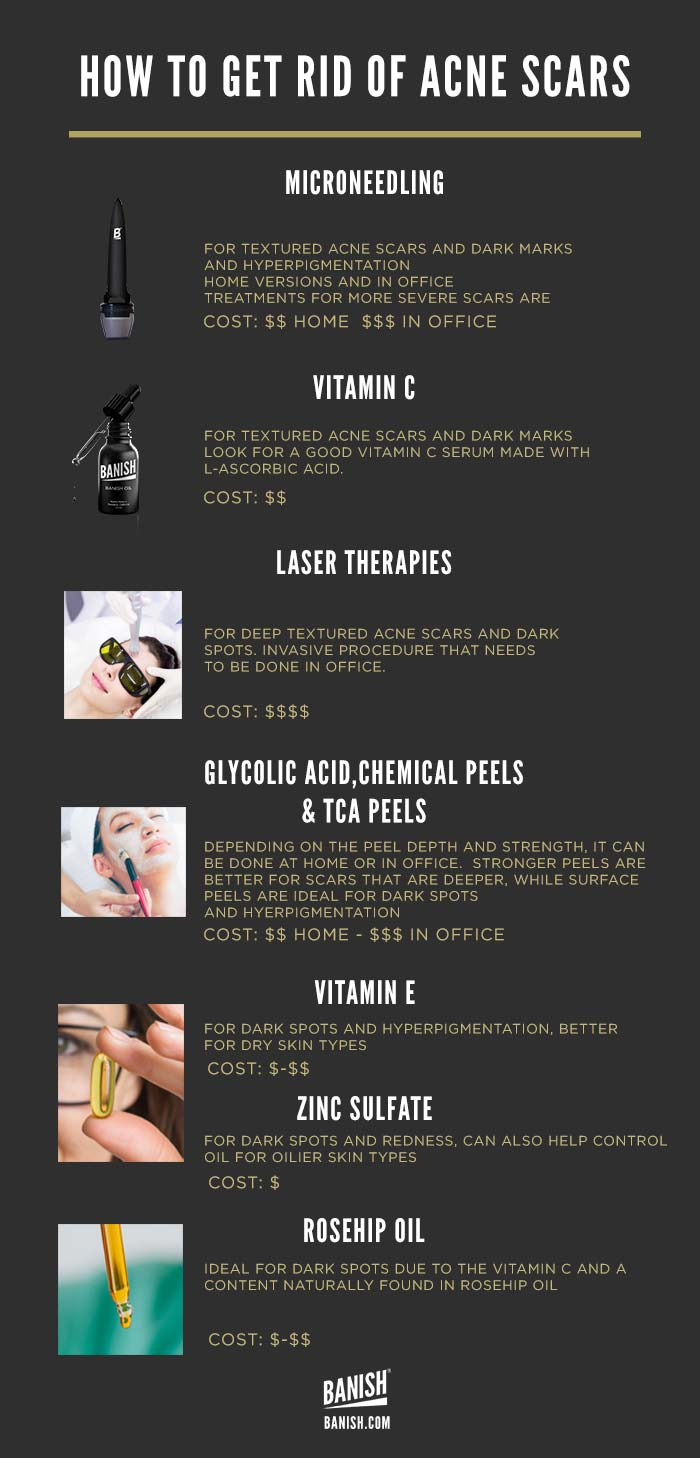 how to get rid of acne scars infographic banish