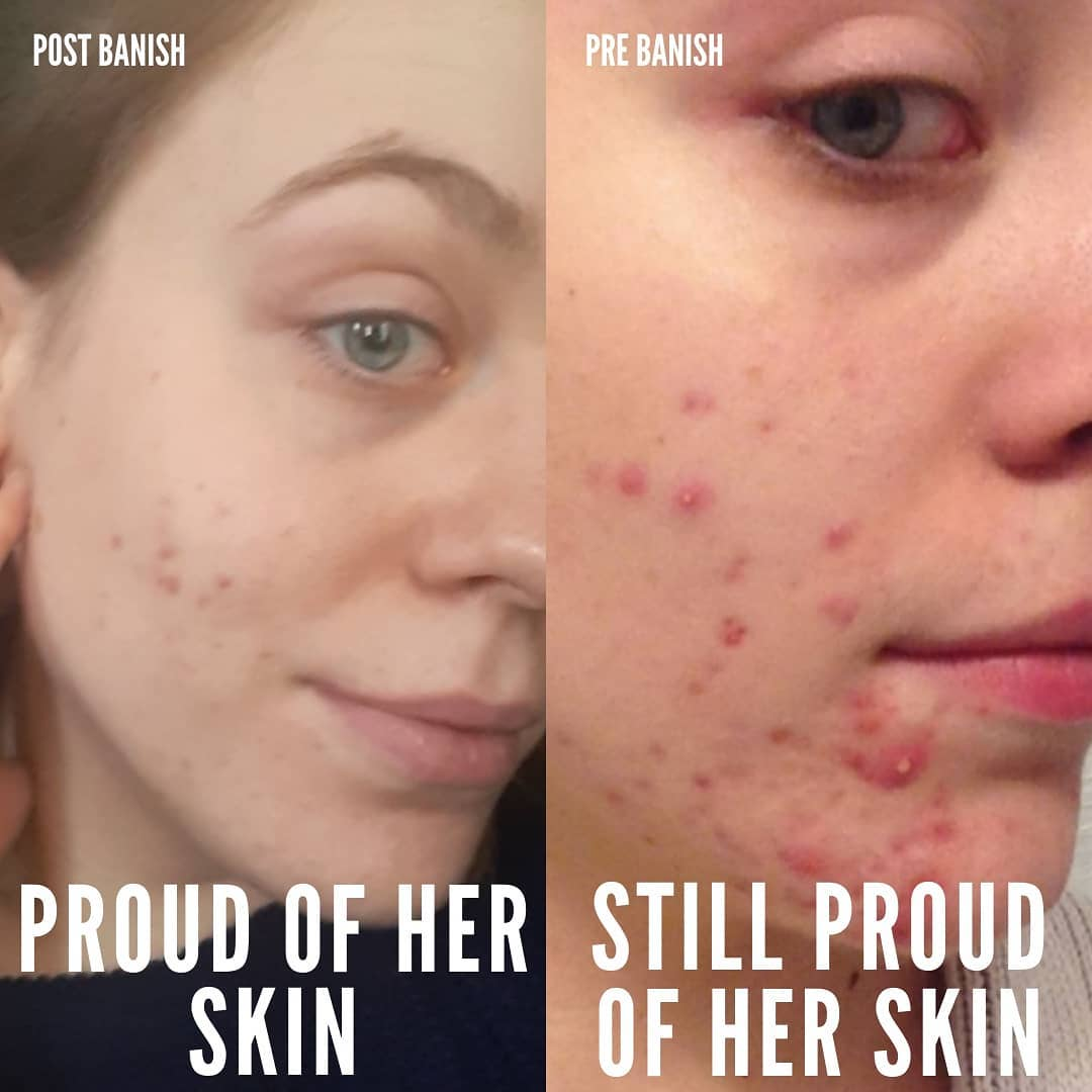 banish acne scars results katherine