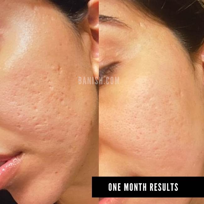 banisher acne scar results