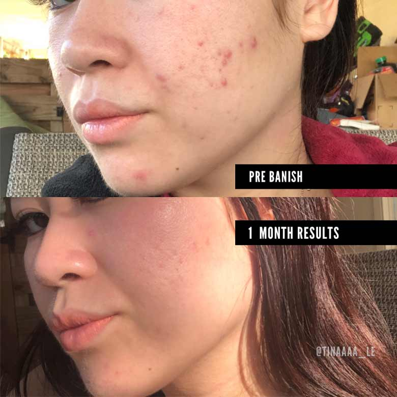 banish kit 2.0 acne scars before and after
