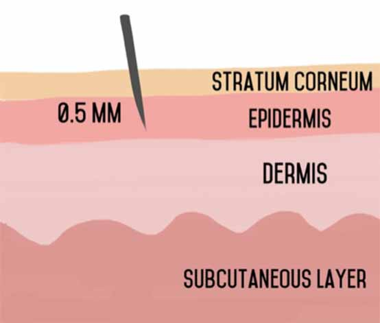 microneedling drawing epidermis level 0.5mm