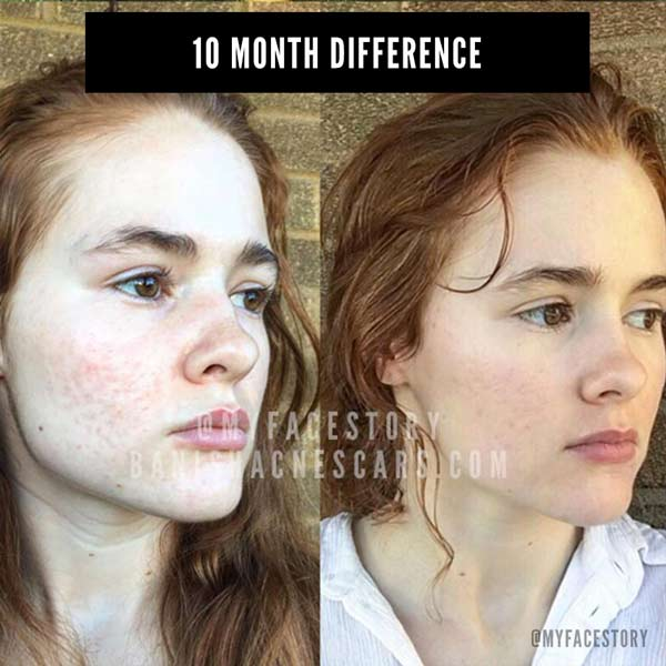banish kit 2.0 acne scars before after